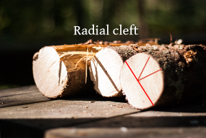 radial_cleft